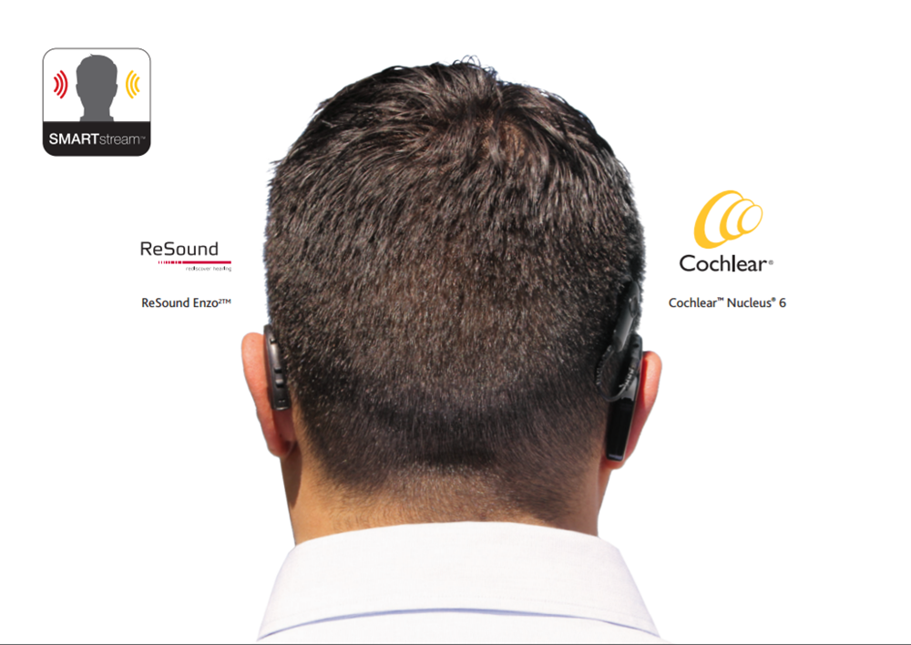 Back of head, showing two cochlear implants