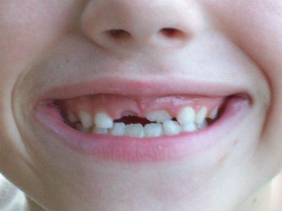 Oral Health of Children